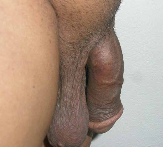 AMS Spectra -Penis kept in flaccid position - Side view.JPG